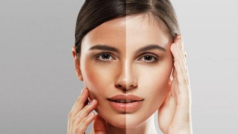 مميزات وسعر كريم الفا بلس لتبييض الوجه