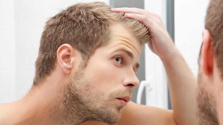 لماذا Solgar أفضل فيتامين E للشعر المتساقط؟