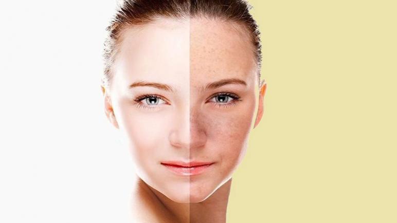 أفضل كريمات تفتيح الوجه والمناطق الحساسة سريعة المفعول