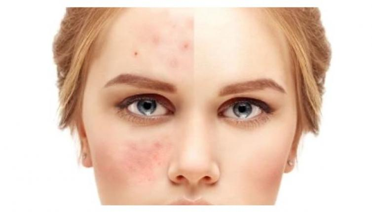 أفضل أنواع صابون الكبريت لتبييض الوجه وعلاج حب الشباب
