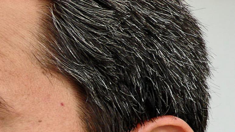 ما هي طرق علاج الشعر الأبيض المبكر
