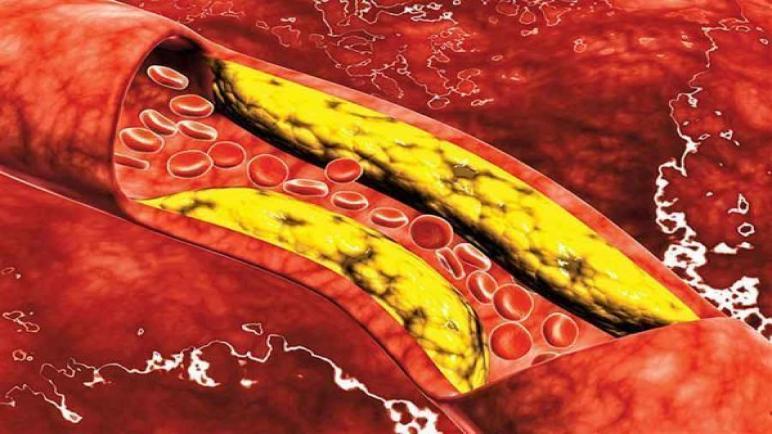 أسباب ارتفاع الكوليسترول وأفضل المنتجات الصحية لتخفيضه من آي هيرب